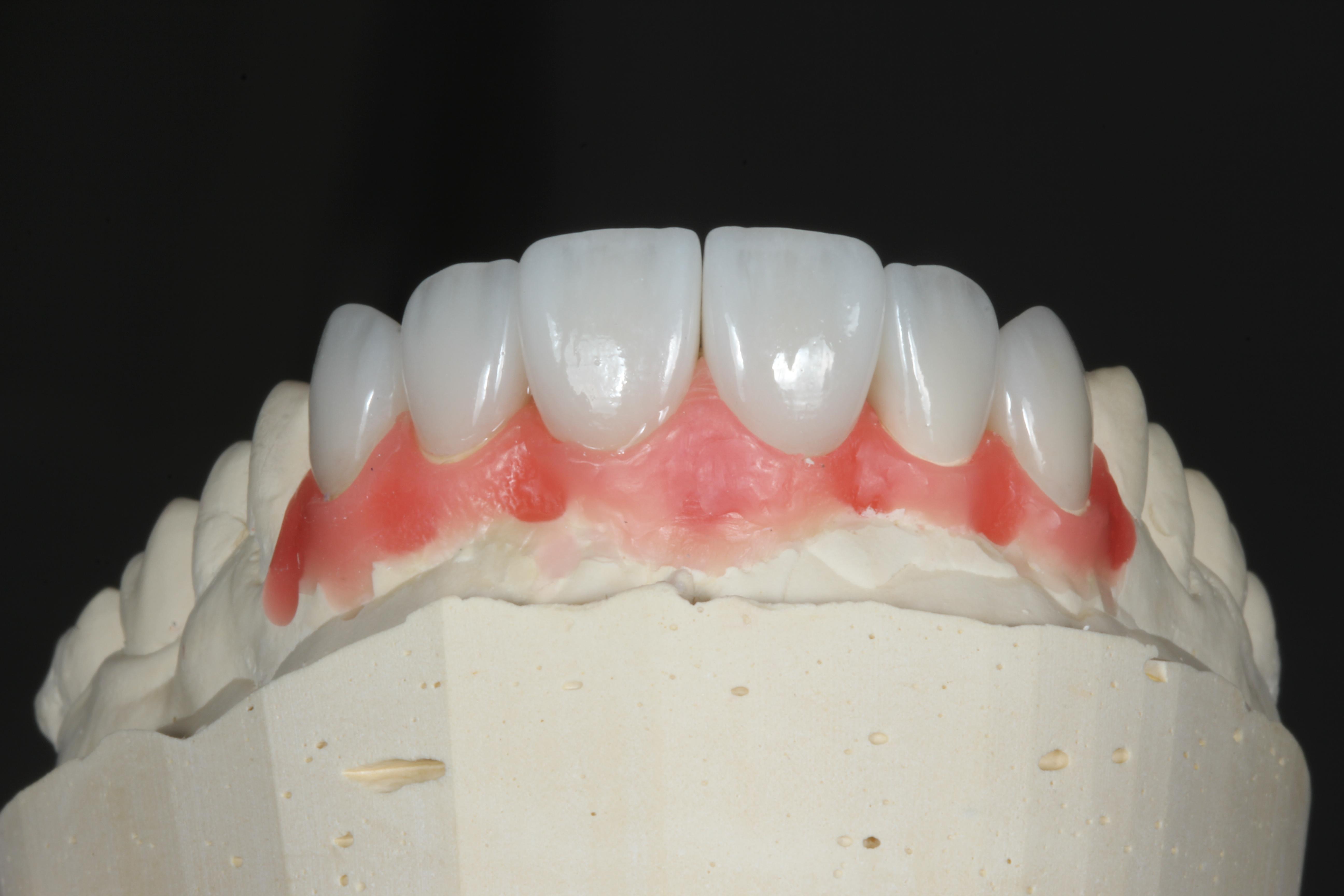 Керамические виниры на гипсовой моделе вид спереди.