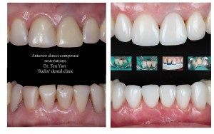 anterior direct composite restorations 2