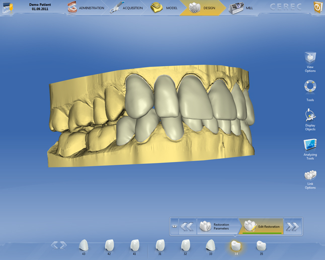 pi_cerec_software_4_multiple_restorations_646_01